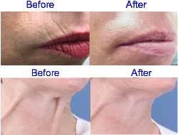 Botox Before & After for the Upper Lip