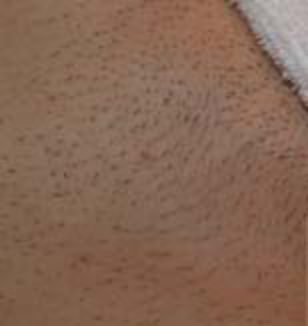 Titan Laser Hair Removal - Before