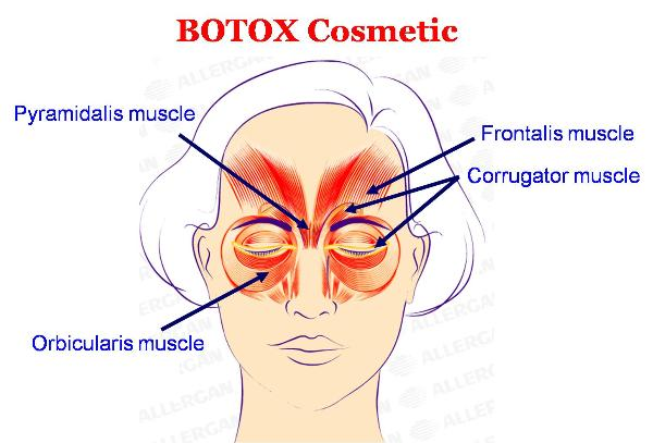 Botox Cosmetic - Treatments