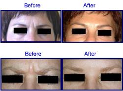 Botox by Allergan Before & After - Glabellar Frown Lines