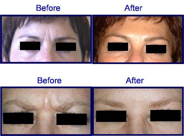 BOTOX Before & After Pictures - Frown Lines, Forehead Worry Lines, Brow Lift