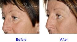 Restylane Before & After for Periorbital Lines