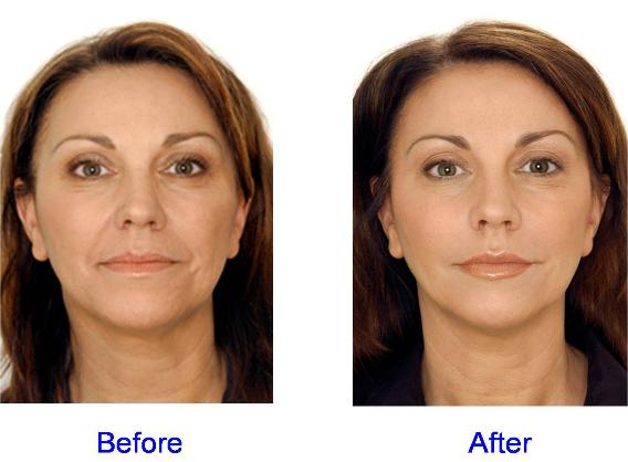Restylane, Juvederm, and Perlane Before & After - Face Area